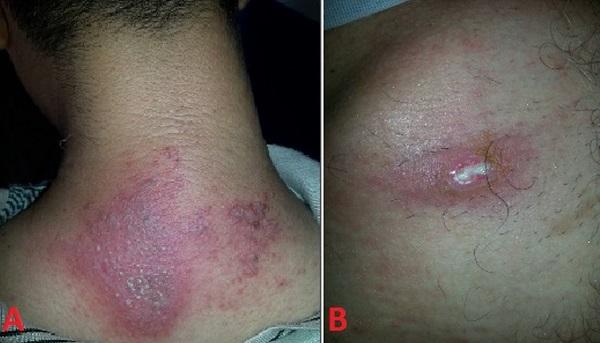 Vết phồng rộp do kiến ba khoang gây ra